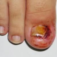 """Sert tırnağın yumuşak dokuyu sıkıştırıp tahriş etmesi sonucu oluşan iltihaplanma ve kronik yaraya tırnak batması denir. Genellikle ayaklarda ve birinci parmakta görülür.     Tırnak batmasının sebebi nedir? En sık olarak hatalı ve derinden kesilen ayak tırnakları,  İyi uymayan dar veya sivri burunlu ayakkabılar, Devamlı darbelere maruz kalan tırnaklar (sporcular, uçak hostesleri ve bütün gün ayakta çalışan kişiler),  Hamilelik ve doğum sonrası dönemleri, Obezite (şişmanlık), Tırnakların mantar enfeksiyonu vs.   Batan tırnağın etrafında şiddetli ağrı, şişme ve kızarıklık görülür ve bazen yaranın iltihaplanması ve yumuşak dokunun tepkisi ile tırnak kenarındaki doku da tırnağın üzerine doğru ilerler.   TIRNAK BATMASINDA MEVCUT TEDAVİ YÖNTEMLERİ  Günümüzde uygulanan tedaviler cerrahi müdahalesi, lazer tedavisi, fenol gibi kimyasal maddelerin kullanımı ve elektrikli cihazla """"koterizasyon"""" adlandırılan yakma yöntemlerinden ibarettir. Bu yöntemler bazen oldukça yan etkili ve sorunlu, bazen ise yetersiz olup sıklıkla batma sorunu tekrarlanır. Tırnak çekimi sonrası hastaların büyük oranında yeni çıkan tırnakta tekrar batma meydana gelir, çoğu zaman ise tırnak deforme ve bozuk yapıda uzar; maalesef bu durumun tedavisi ve tırnağı eski sağlıklı yapısına geri getirilmek mümkün olmamaktadır.       TIRNAK BATMASINDA """"DOĞRU"""" TEDAVİ YÖNTEMLERİ  Bantlı tel sistemi, 3TO tel sistemi, silikonlu tampon, VHO tel sistemi, altın tel sistemidir. Tüm bu sistemler, tırnak ile birlikte tırnak yatağını ve deformelerini de tedavi eder, batığın tekrarlamasını önler.  NOT: Hastanın bu sorunu tekrar yaşamaması için, ayakkabı seçimi, tırnak kesimi ve tırnak bakımı ile ilgili hasta mutlaka bilgilendirilir.Rutin olarak hastaya medikal ayak bakımı uzmanları tarafından klasik bakımlar uygulanarak çeşitli ayak sorunları ve tırnak batması ortadan kaldırılmış olunur."""