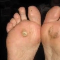 Soft Corn Parmak Arası Nasır Yumuşak nasırlar, ayak parmaklarının arasındaki boşluklarda gizlenen, ağrılı, akıntılı sorunlardır. Bu problemde kişinin, ayak parmaklarında var olan şekilsel değişiklikler ayak parmak aralarının basınç altında kalmasına yol açar. Özellikle ucu sivri ve yüksek topuklu ayakkabı giyilmesi, ayak parmaklarının üzerine binen yükü arttıran bir faktördür. Kişinin ayaklarında çekiç parmak, bunion gibi problemler olduğunda ayak parmakları ayağın ön bölümünde sıkışır. Bu sıkışma, kemikteki bozulmuş yapının parmak arasındaki yumuşak dokuya bası yaparak açılmasına yol açar.     Hard Corn-Nasır Nasırlar ayaklarda mevcut kemik deformiteleri, basma kusurları dolayısıyla ayakkabının cilt üzerine basınç yapmasından kaynaklanan sertleşmelerdir. Derinin üst tabakası sertleşir ve sertleşme altındaki dokuları irrite ederek aşağı doğru yapılanır. Sert nasırlar, çoğunlukla parmakların üzerine ve küçük ayak parmağının kenarına yerleşirler. Yumuşak nasırlar akıntıya yol açar mantar enfeksiyonlarına benzerler ve genellikle parmak aralarında sürtünen yüzeyler arasında gelişirler. Nasırların Sebepleri; • Ayağa uymayan ayakkabı giyimi en sık rastlanan sebeptir. Eğer ayakkabılar çok sıkıysa, ayağınızı artan bir basınçla sıkıştırırlar. Eğer ayakkabılar çok gevşekse, ayak kayabilir ve ayakkabı içinde sürtünme oluşur. • Çekiç parmak ve pençe parmak gibi ayak parmağı deformiteleri • Ayağın ön bölümünde basınç artışına neden olan yüksek topuklu ayakkabılar • Ayakta düztabanlık veya yüksek kavis gibi bir ortopedik problemler • Aşil tendon problemlerinde gelişen ayak basınç değer değişiklikleri nasır oluşumuna yol açabilir.                                                                                                                                                                           Tedavilerinde; Nasır bakımında uygun olan freze uçları ile nasırlı bölge temizlenir. Hijyen kurallarına uygun olarak her freze ucu kişiye özel kullanılır.   Uygulama sonrasında mutlaka s