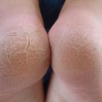 Topuk çatlakları en sık rastlanan ayak problemlerinden biridir. Özellikle bayanlar için görsel olarak rahatsızlık verirken, bazen de ağrı problemine neden olurlar. Topuk çatlakları kolaylıkla mikroorganizmalara giriş kapısı oluşturur.     Cildi kuru olan kişiler, topuk çatlaklarına daha fazla eğilim gösterir. Özellikle topuktaki nasır şeklindeki kalınlaşmalar, yürümenin neden olduğu travma ile çatlayabilir. Deri altındaki yağ dokusu vücut ağırlığının altında kaldığında, ayak derisini yana doğru genişleterek çatlamaya neden olur. Sağlıklı bir kişide bu çatlaklar fazla problem oluşturmazken, şeker hastalığı, dolaşım bozukluğu olan kişiler ve kronik hastalığı olan kişilerde enfeksiyon riskini arttırarak önemli problemlere neden olabilmektedirler. Çatlak topuklar görsel olarak sorun oluşturduğu gibi anatomik yapıda bir bozukluk olduğunun da habercisidir. Basınç fonksiyonun hatalı olması bel fıtığı, boyun fıtığı, diz ağrıları, eklem ağrıları gibi rahatsızlıkların işaretidir. Podiatri Akademisinde 3D cihazlar ile basınç analizi yapılarak kişiye özel tabanlık uygulaması yapılarak bu sorunlar ortadan kaldırılmış olunur. ( Ciddi anatomik sorunlarda ortopedi uzmanına yönlendirilir). Topuklarda çatlak bulunması durumunda ayak sağlığı uzmanına başvurulduğunda aşağıdaki tedaviler uygulanabilir; Çatlağa neden olabilecek etkenler araştırılmalı ve önlem alınmalıdır. Eğer mantar enfeksiyonu var ise tedavi edilmelidir. Medikal bakım yapılarak ölü deri arındırılır. Uygun nemlendiriciler kullanılır. Özellikle rahat ayakkabılar tercih edilmelidir. Gerekirse koruyucu tabanlıklar kullanılmalıdır.