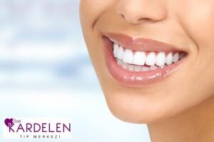 Özel Kardelen Tıp Merkezi'nden Diş Parlatma ve Diş Taşı Temizliği